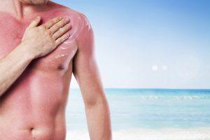 Mann mit Sonnenbrand